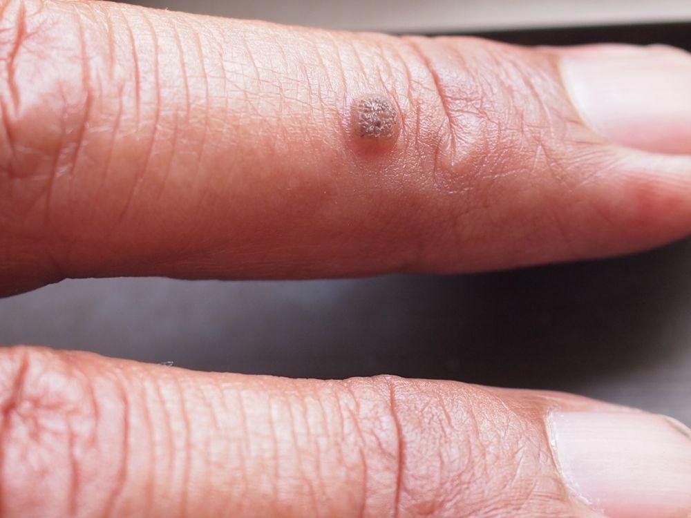 bradavica na prste, ako sa jej zbaviť
