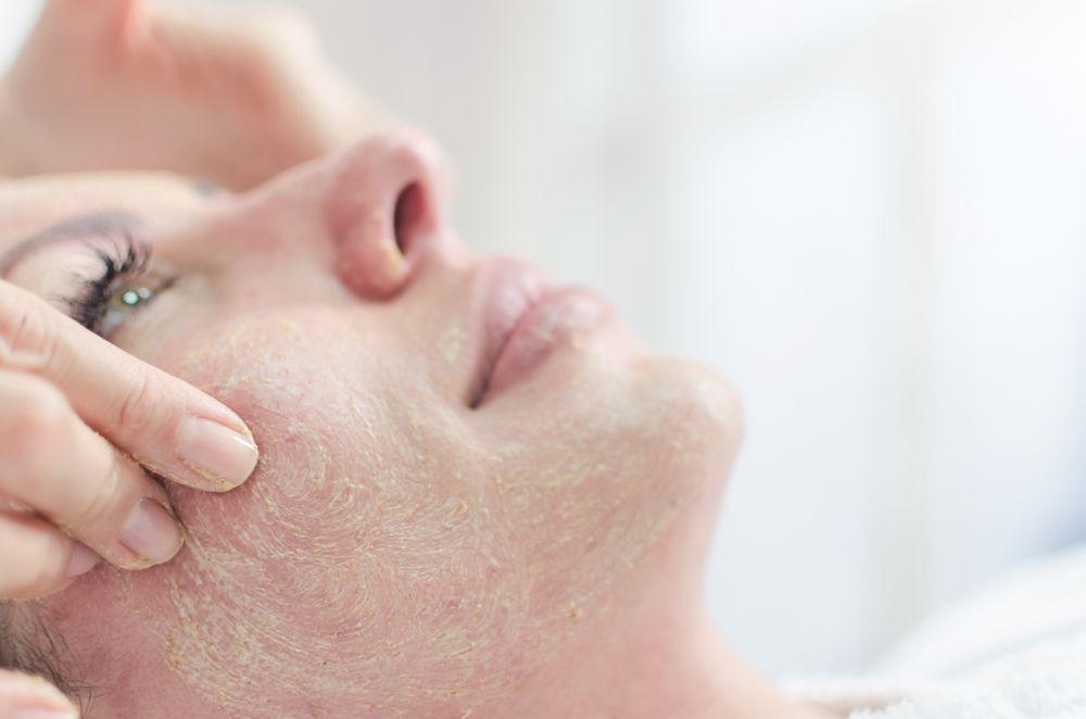 čistenie pokožky sóda bikarbóna
