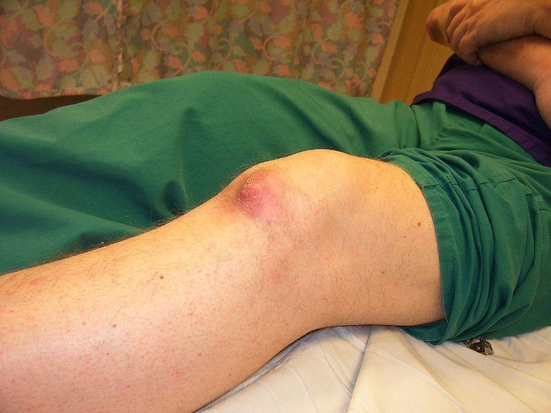 Prejavy DNA choroby na kolene