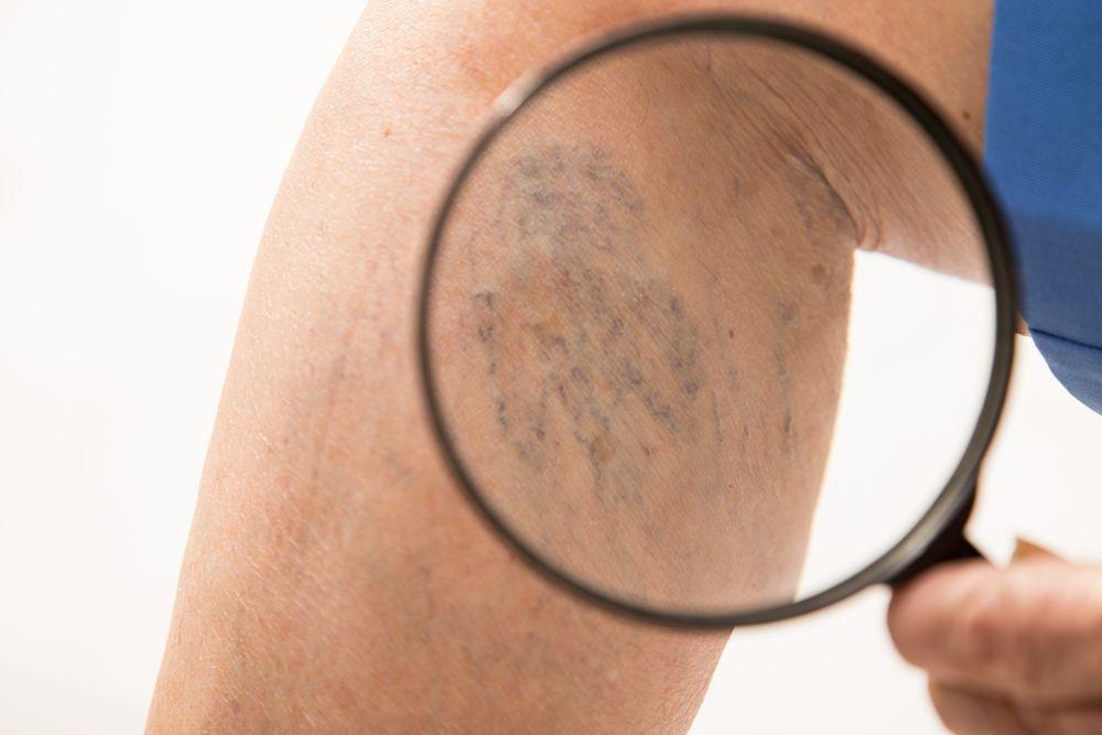 kŕčové žily na nohe