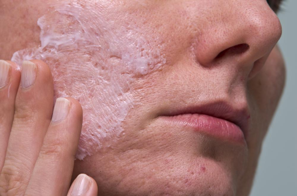 krém - ako odstraniť jazvy po akné