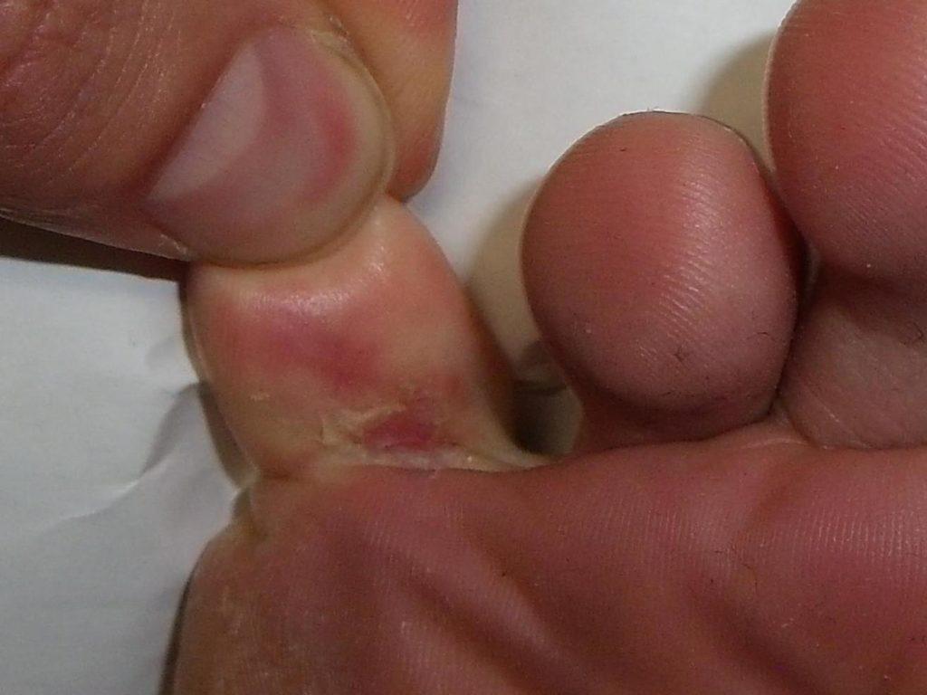 Грибок на ногах между пальцев мокрый