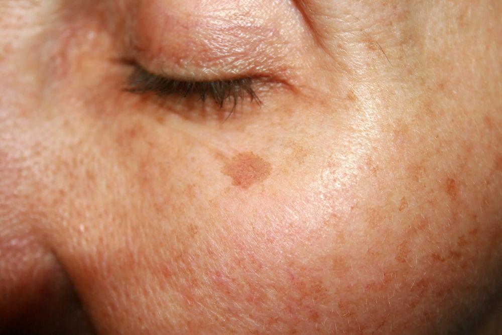 pigmentové škvrny pod okom