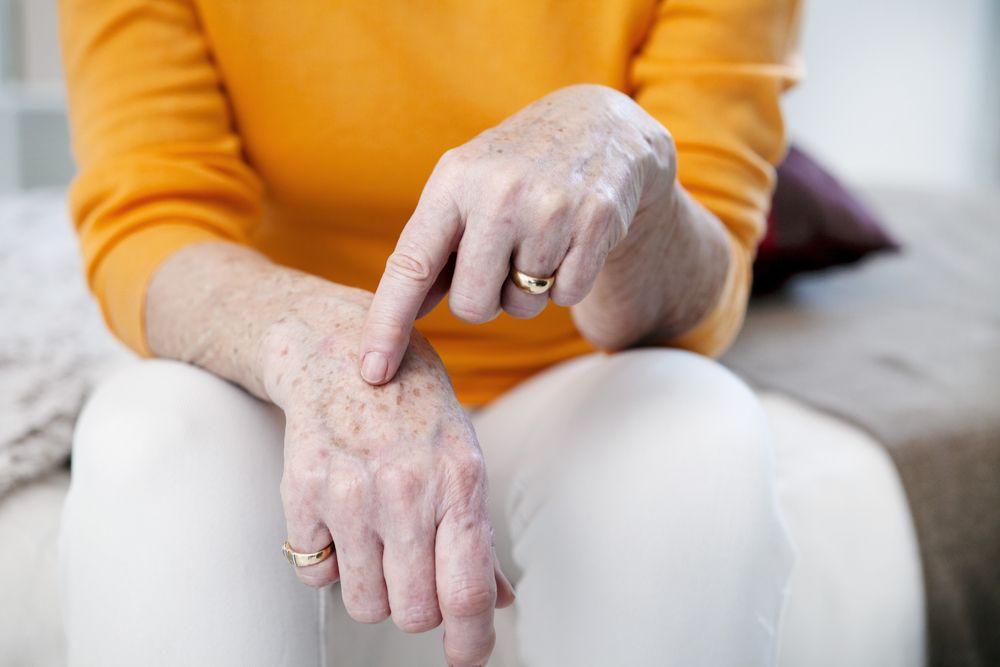 pigmentové škvrny na ruke