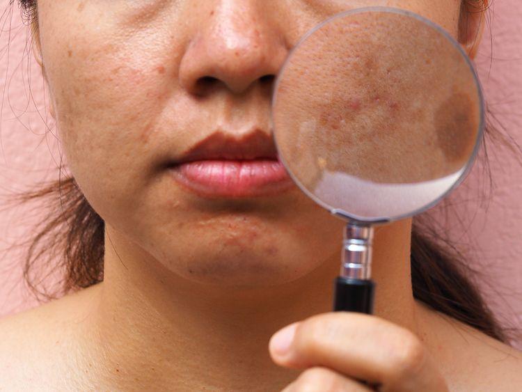 pigmentové škvrny na tvári mladý človek