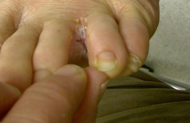 pleseň medzi prstami