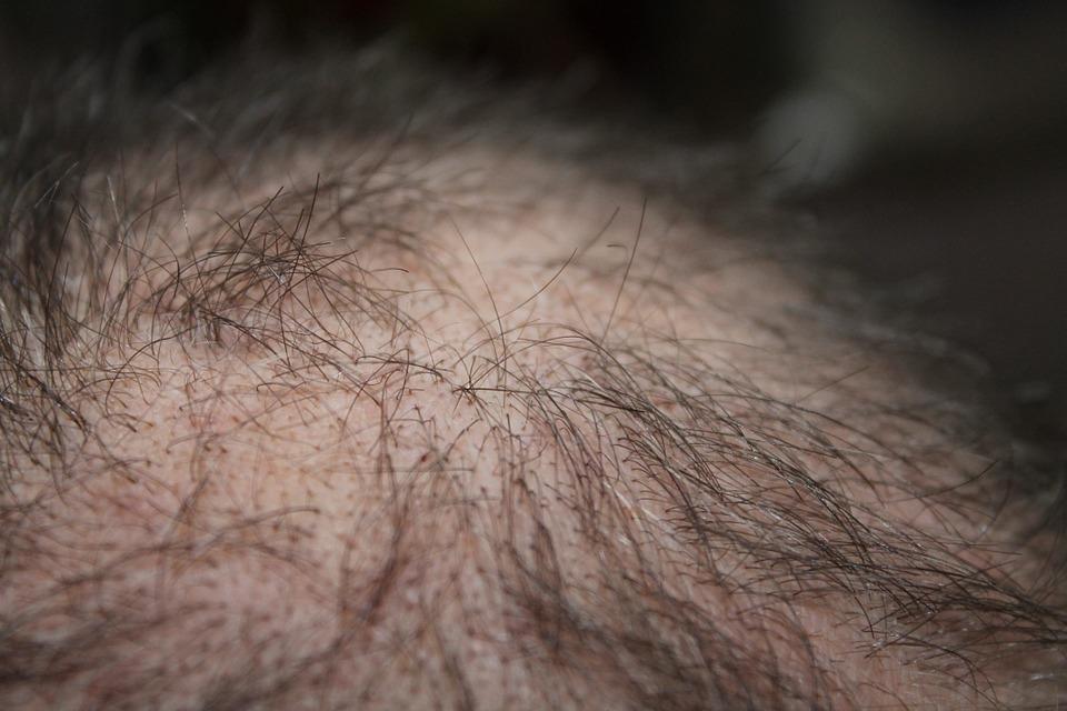 Príčiny vypadávania vlasov sú rôzne