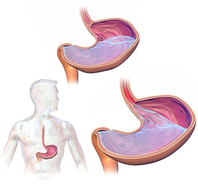 reflux - príčiny a liečba