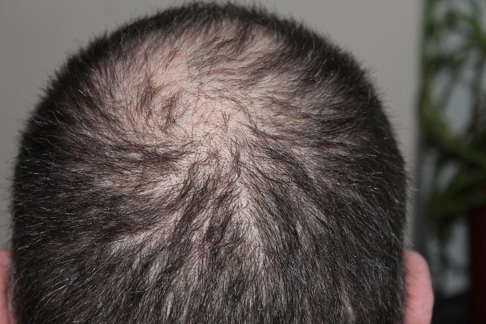 vypadávanie vlasov u mužov - príčiny
