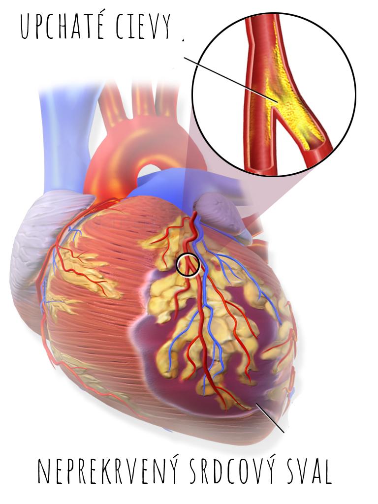 srdcový infarkt upchaté cievy