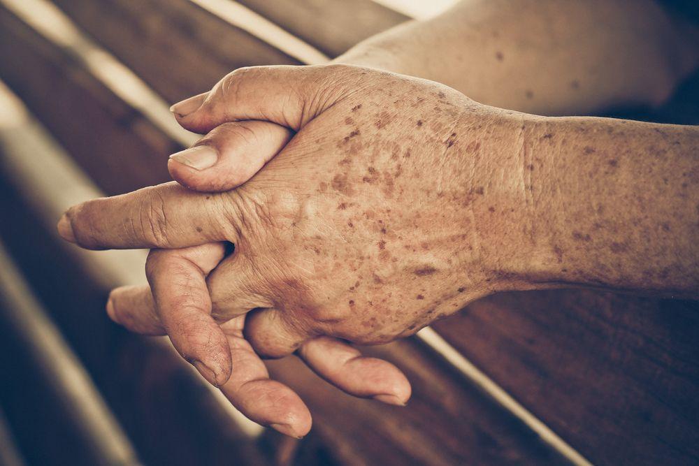 Starecké škvrny na rukách
