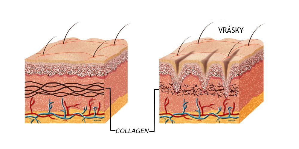 Vrásky - príčina - nedostatok kolagénu
