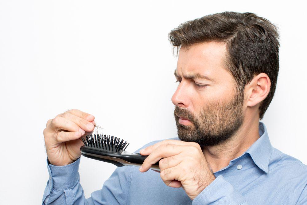 vypadávanie vlasov u mužov