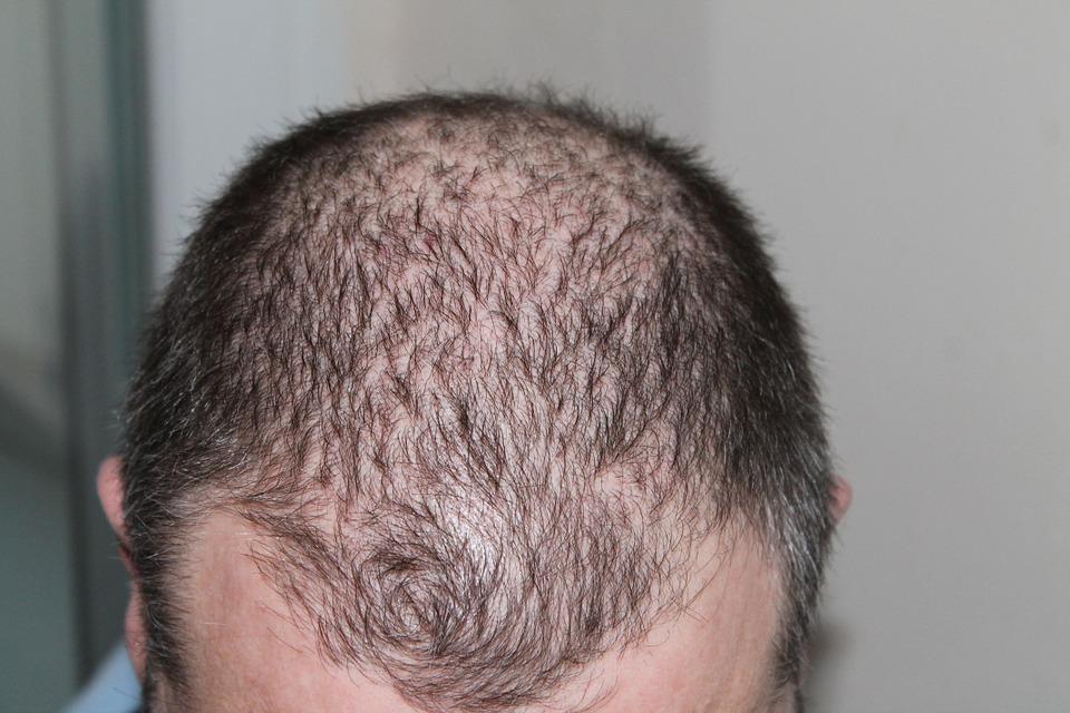 vypadávanie vlasov vo vyššom veku
