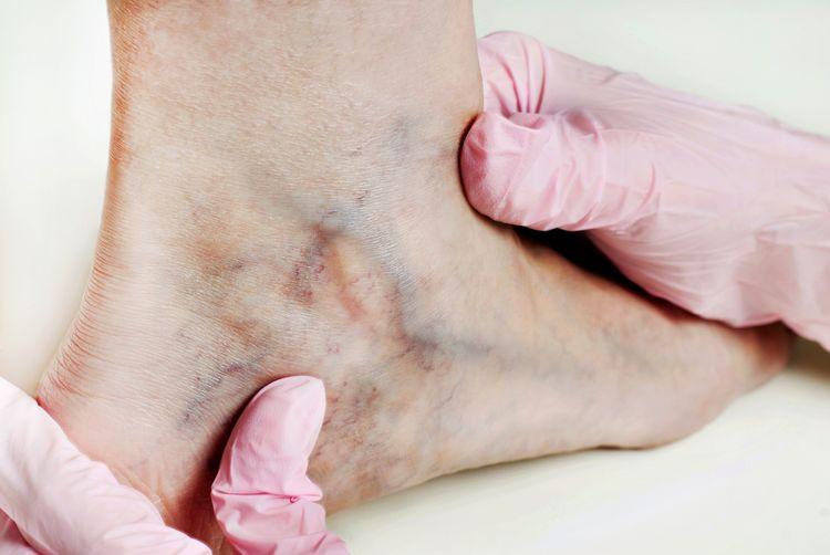kŕčové žily na členku - vyšetrenie