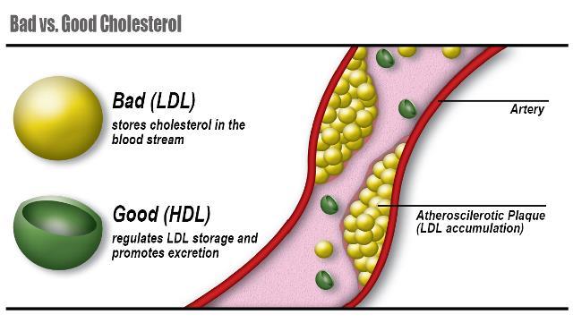 Dobrý a zlý cholesterol (LDL a HDL)