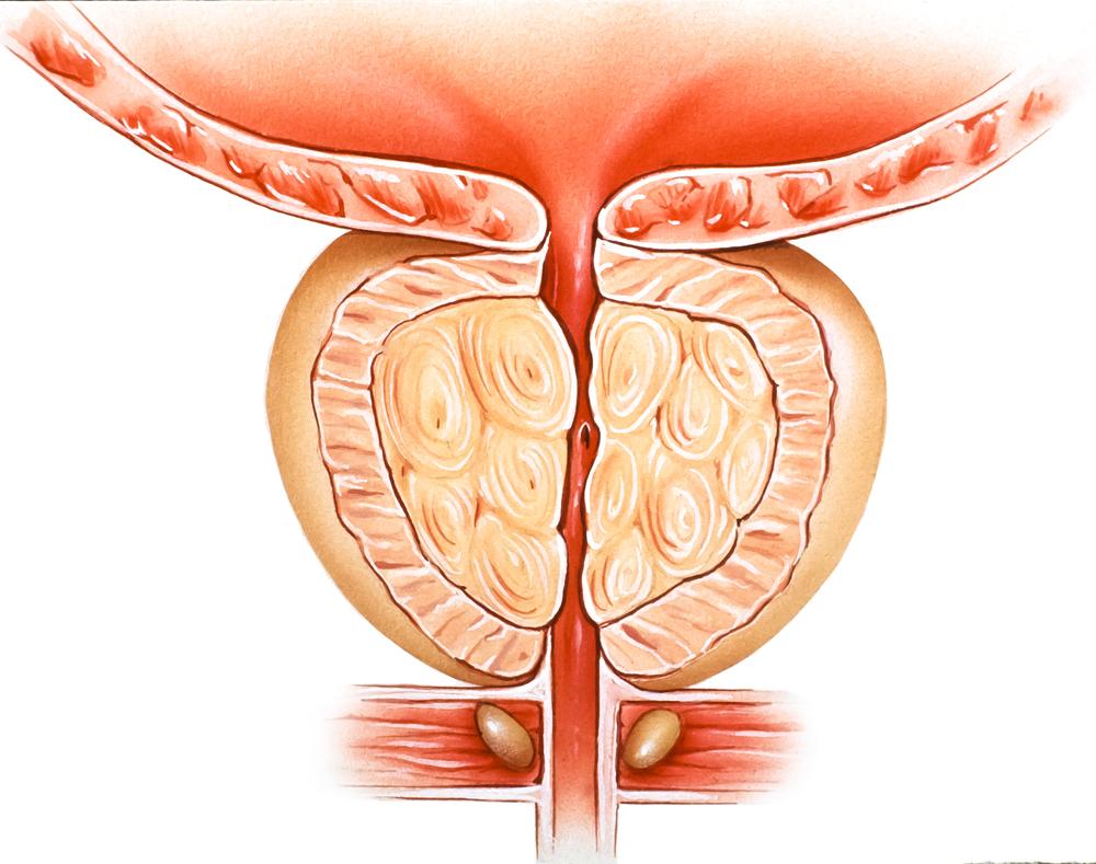 nezhubné zväčšenie prostaty spôsobuje bolesti